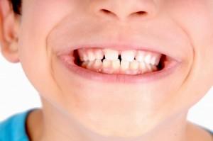 yellow-adult-teeth