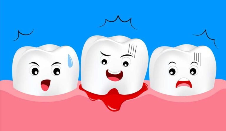 What is Gum Disease in Kids