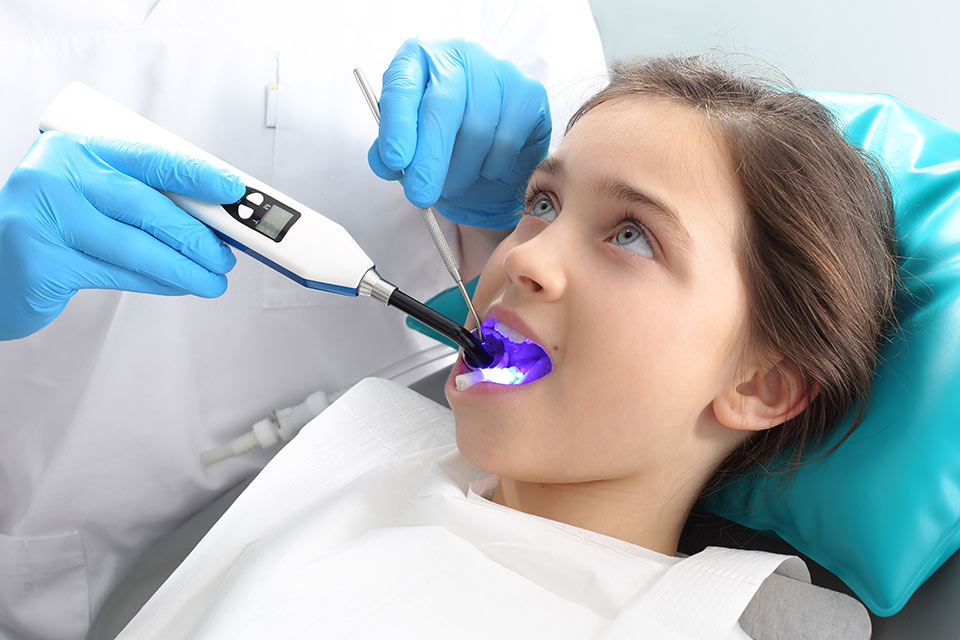 Pediatric Dental Sealants